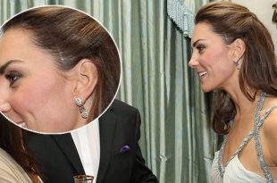 The Real Story Behind Kate's Scar On Her Left Temple